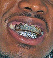 DentalGrill.jpg