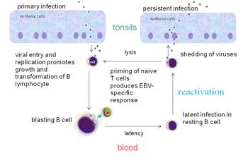 virus Epstein-Barr Virus (EBV)