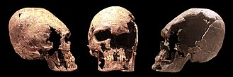 Artificial cranial deformation - Elongated skull of a young woman, probably an Alan.