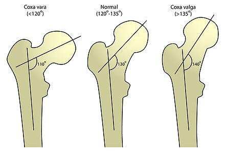 fractura colli femoris metoda de tratament comun Preț
