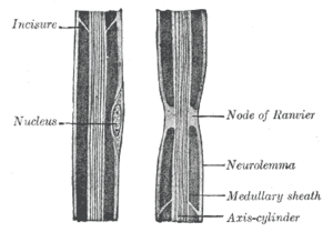 "Node of Ranvier - Drawing of a peripheral nerve axon (labeled ""axis cylinder""), showing a node of Ranvier along with other features"