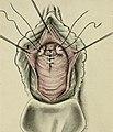 Gynecology (1916) (14799513543).jpg