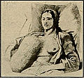 Hypertrophy of breast 10.jpg