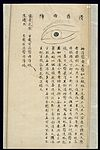 Illustration from Ming Chinese ophthalmology text, Ms copy Wellcome L0039698.jpg