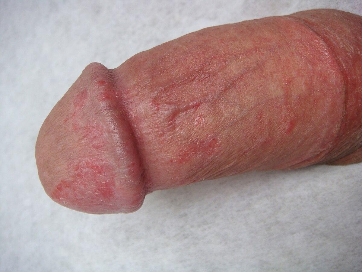 Fingering porn pics-1323