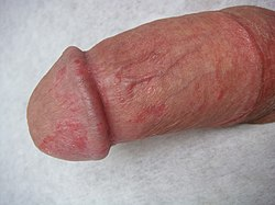 Inflammation of the glans penis and the preputial mucosa.jpg