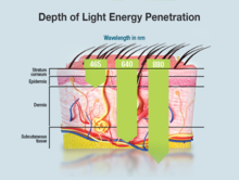 [Image: 220px-Light_Penetration.png]