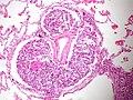 Metastatic gastric adenocarcinoma-lymphangitic carcinomatosis (7261944992).jpg