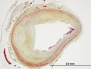 Movat's stain - Image: Movat's stain in coronary artery