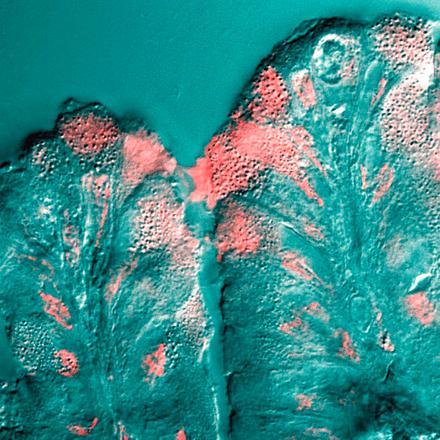 mucosidad laringea