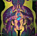 Pelvis coronal 125136 rgbc t1 diff stir.png