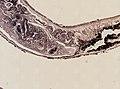 Pleioplana atomata (YPM IZ 073711) 13.jpeg
