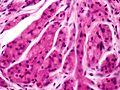 Skin Tumors-PA291042.jpg