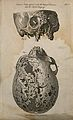 Skulls infected with venereal disease; two figures. Line eng Wellcome V0008001.jpg