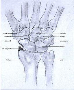 what is wrist arthritis