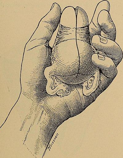 The diagnosis of diseases of women (1905) (14763212875).jpg