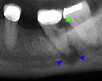 Tooth decay and abscess xray.png