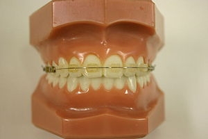 "Dental braces - ""Clear"" braces"