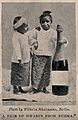 Two dwarfs from Burma, standing next to a bottle. Reproducti Wellcome V0007436.jpg