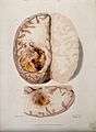 Two sections of diseased brain. Coloured stipple etching by Wellcome V0009790.jpg