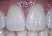 06-10-06centralincisors.jpg