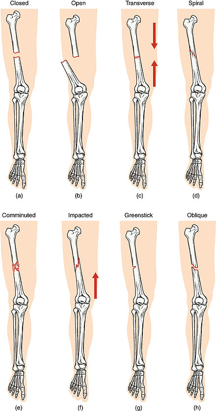 Bone Fracture Wikiwand