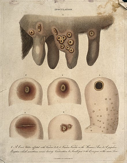 Jenner's discovery of the link between cowpox pus and smallpox in humans helped him to create the smallpox vaccine. A cow's udder with vaccinia pustules and human arms exhibiti Wellcome V0016678.jpg