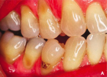 Abrasion Occurring On The Cervical Margins From Effects Of Friction Toothbrushing And Abrasive Toothpastes