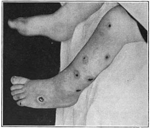An introduction to dermatology (1905) ecthyma.jpg