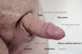 Anatomy of human penis with common problems.png