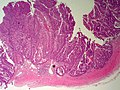 BileDuct IntraductalPapillaryNeoplasm LP CTR.jpg