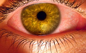 Effects of cannabis - Bloodshot eye