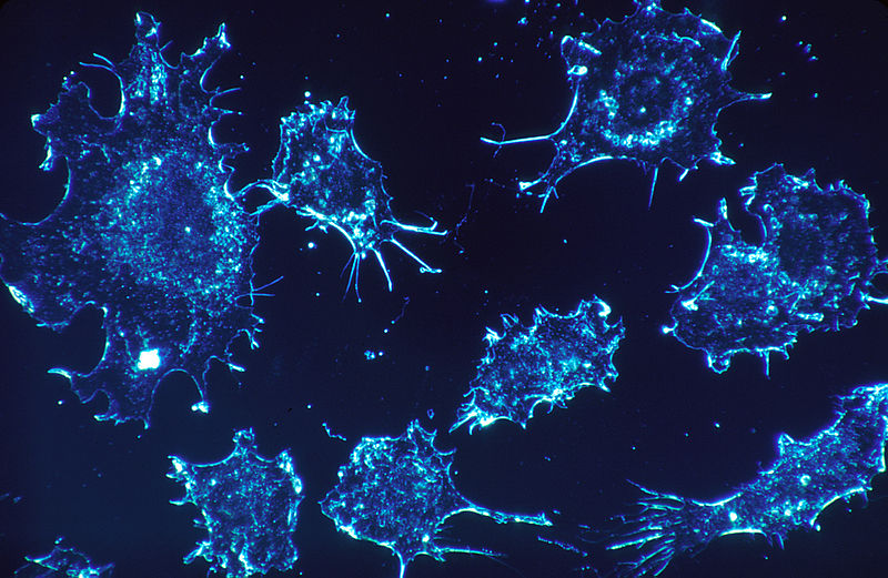 File:Cancer cells (1).jpg