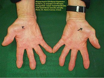 English: Carpal Tunnel Syndrome, thenar atroph...