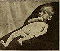 Diseases of infancy and childhood (1914) (14748983756).jpg