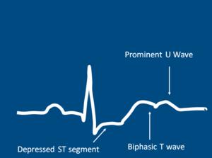 ECG Pattern Of Hypokalemia.png