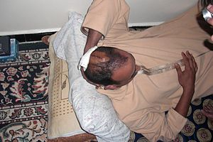 Human rights in Western Sahara - Sahrawi civilian showing his head wounds caused by Moroccan police during a demonstration in Dakhla, 2 March 2011.