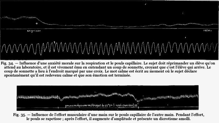 FI-d101-fig. 34-35 - Influence anxiété - influence effort musculaire.png
