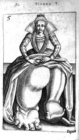 Girl with Elephantiasis from De Hermaphroditorum, 1614 Wellcome L0007591