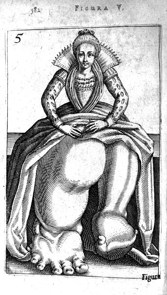 File:Girl with Elephantiasis from De Hermaphroditorum, 1614 Wellcome L0007591.jpg