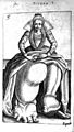 Girl with Elephantiasis from De Hermaphroditorum, 1614 Wellcome L0007591.jpg