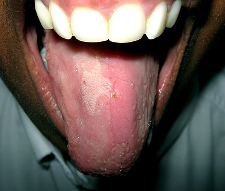 pictures of mouth and tongue disease entusacom - HD 1366×1161