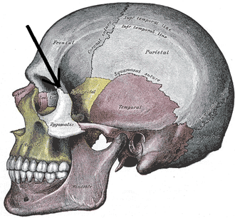 Zygomaticofrontal suture - Side view of the skull.