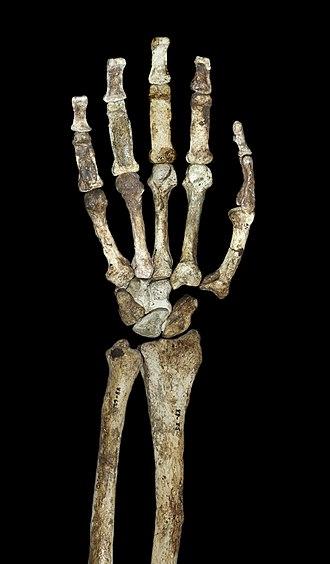 Australopithecus sediba - Palmar view of the hand and forearm of A. sediba paratype MH2.