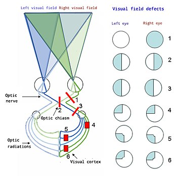 Visual field - Wikipedia