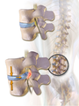 Illustration depicting herniated disc and spinal nerve compression