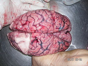 Human brain taken from autopsy.