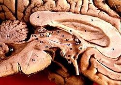 Human brain left midsagitttal view closeup description 2.JPG
