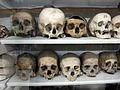 Istituto di anatomia umana normale, museo, campioni ossei, crani 02.JPG