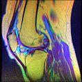 Knee MRI, T1T2PD 09.jpg